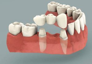 dentalbridge-300x210