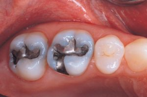 silver-fillings-before